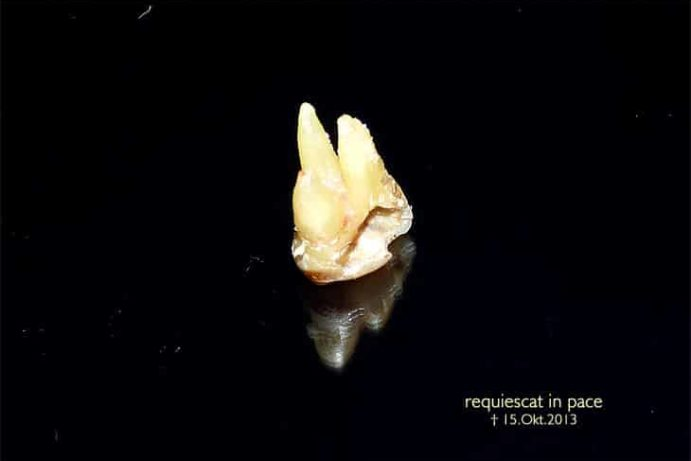 ZeigmirdeineZähneundichsagdirwerdubist Zahnfinanzierung