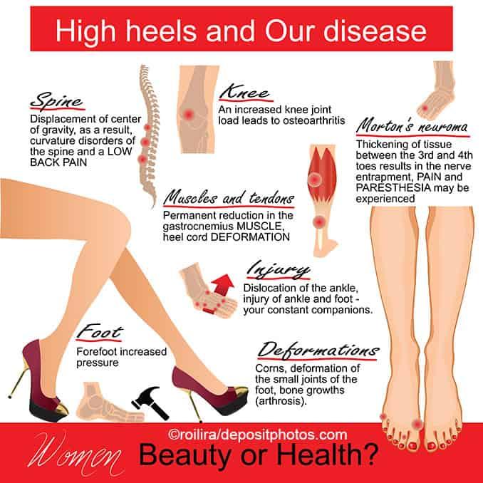 High heels Nachteile