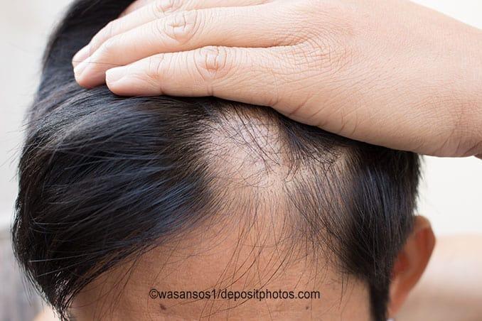 Haarausfall