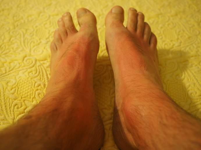 Füße mit Sonnenbrand