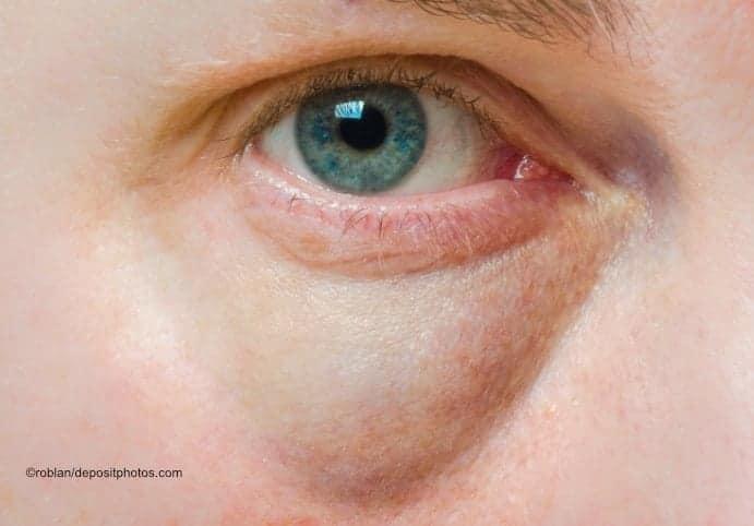 Rote geschwollene Augen