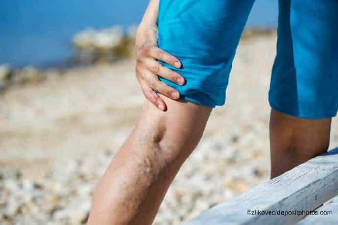 Schwere Beine / Krampfadern